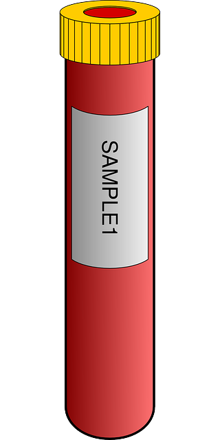 Blood Sample Tube 183 Free Vector Graphic On Pixabay