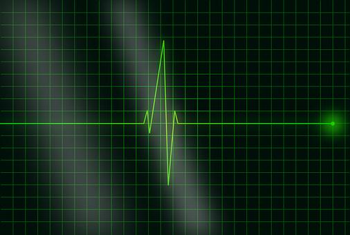 electrocardiogram 36732  340