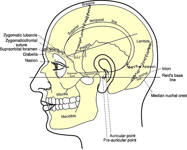 Skull Diagram Head Free Vector Graphic On Pixabay