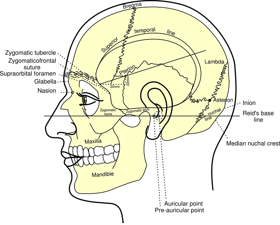 Skull Diagram Head Free Vector Graphic On Pixabay