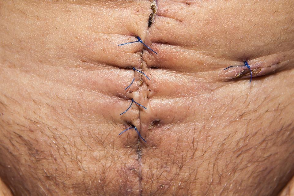 Op Operation Abdomen Surgery - Free photo on Pixabay