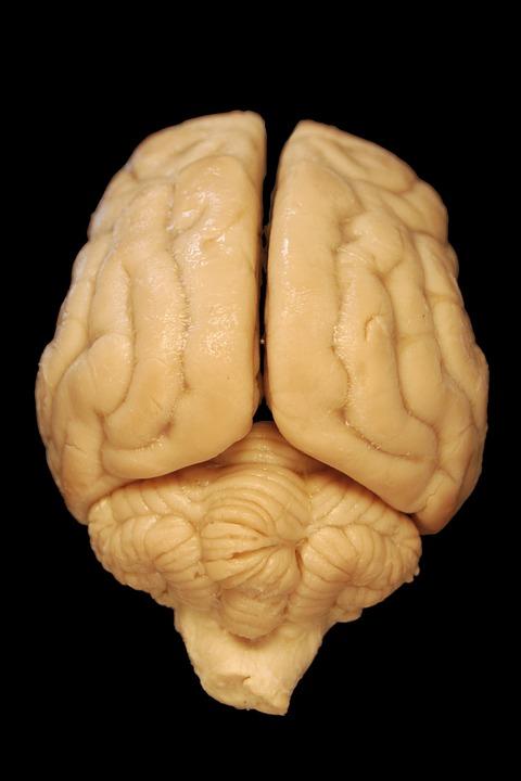 Gehirn Hirn Anatomie · Kostenloses Foto auf Pixabay