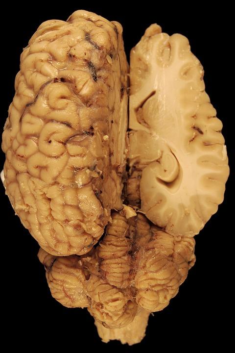 Cerebro Anatomía Caballo · Foto gratis en Pixabay