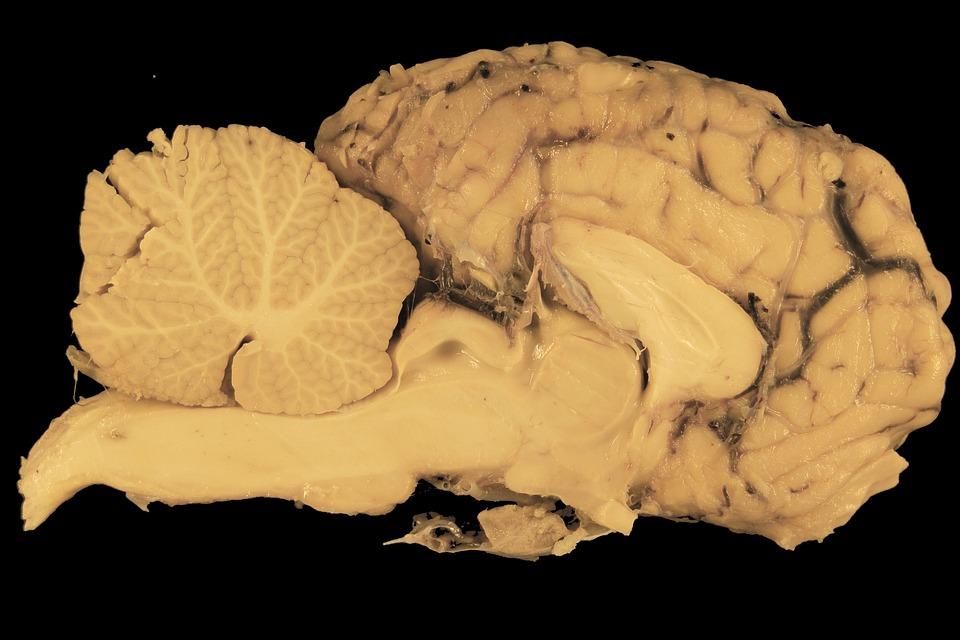 Gehirn Hirn Pferd · Kostenloses Foto auf Pixabay