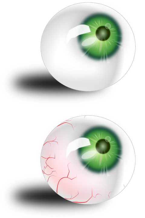 Augapfel Anatomie Rot · Kostenlose Vektorgrafik auf Pixabay