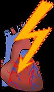 Arritmia, Ataque Cardíaco