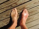 feet, gout, pain
