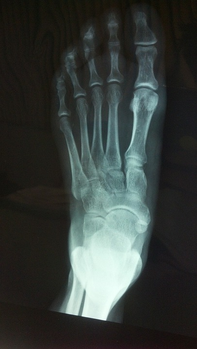 X Ray, Foot, Bone