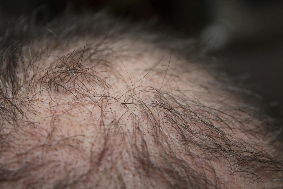 Cheveux, L'Homme, Perte De Cheveux, Tête
