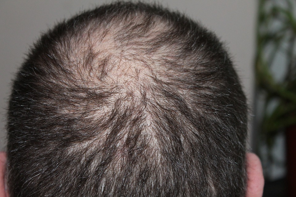 Hair Loss, Why is My Hair Falling Out? Pattern Baldness, baospace