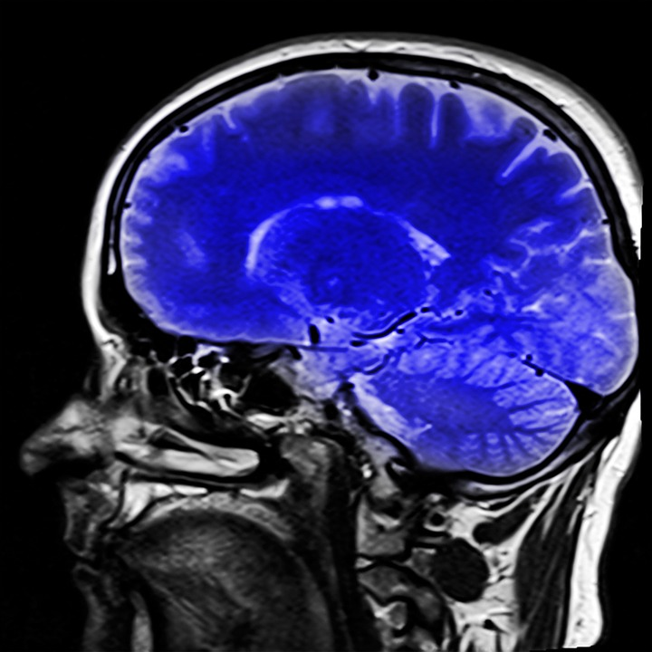 Brain Imaging Research and ADD