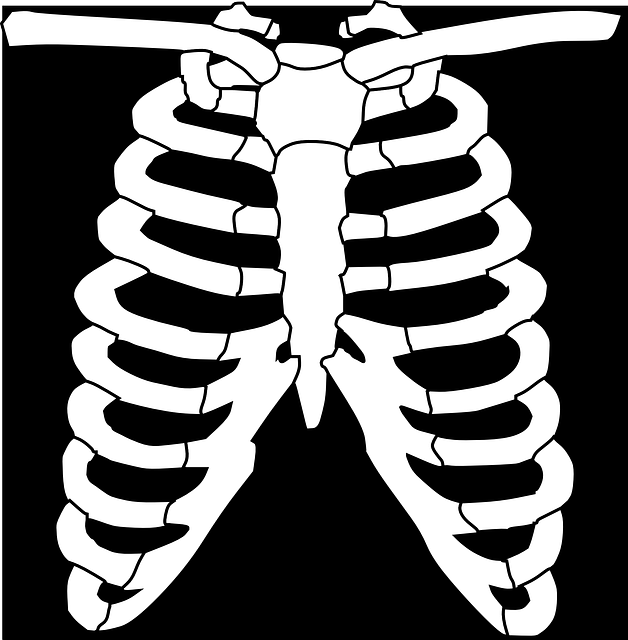 free vector graphic  ribs  skeleton  human  bone