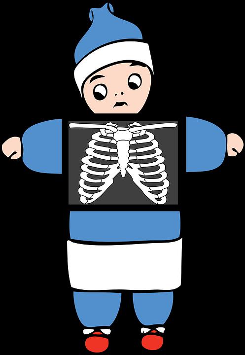 X Ray Anatomie Knochen · Kostenlose Vektorgrafik auf Pixabay