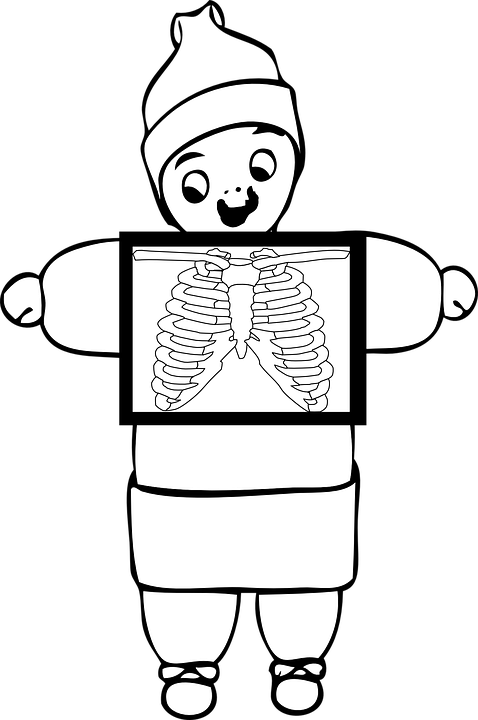 Xray Brust Brustkorb · Kostenlose Vektorgrafik auf Pixabay