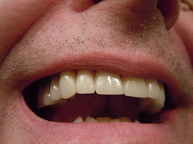 Free Photo Teeth Dental Tooth Mouth Lips Free Image