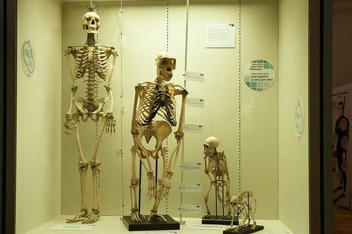 Skelett, Vergleich, Mensch, Affe
