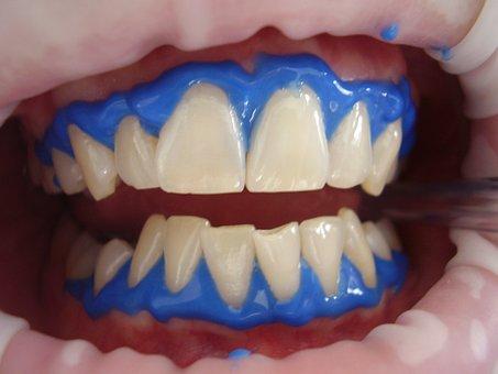 dental implants costa rica reviews