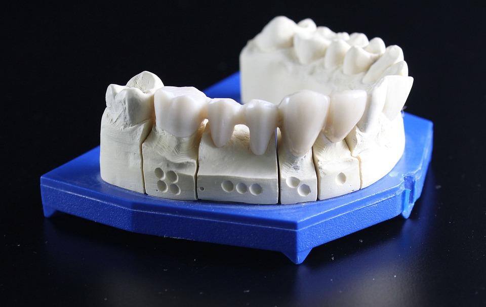 Профессия зубной техник: в чем заключаются основные особенности обучения