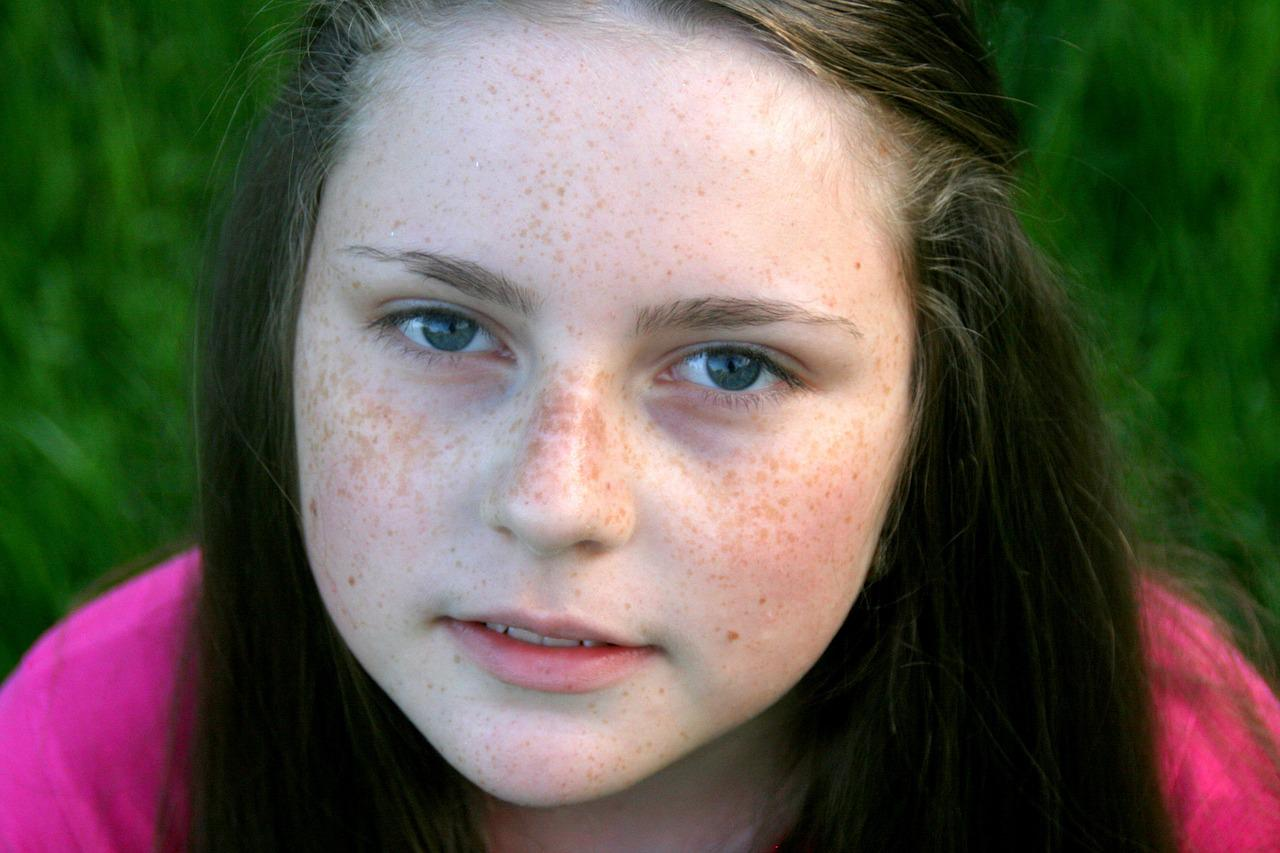 Teen face covered old — pic 9