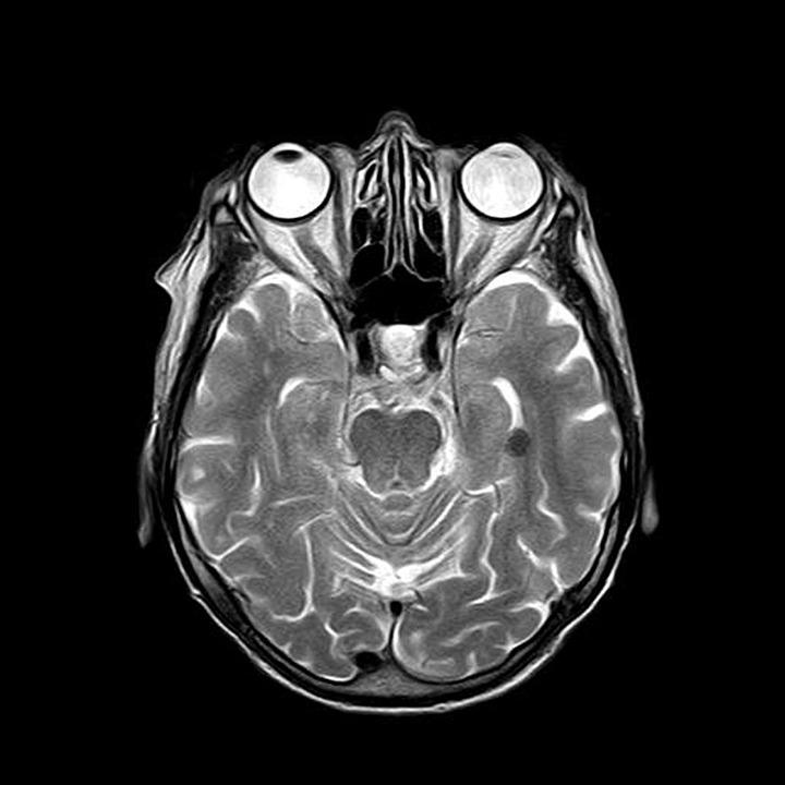 Mri Magnetresonanz Röntgen · Kostenloses Bild auf Pixabay