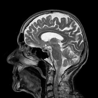 Mri Magnetic X Ray Skull Head Brain Medica