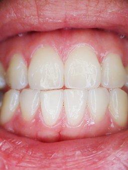 Teeth, Mouth, Dental, Dentist, Tooth