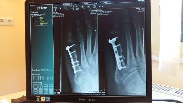X ray 924237  340