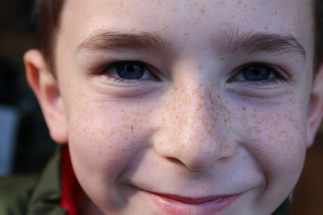 Free Photo Young Freckles Blue Eyes Person Free