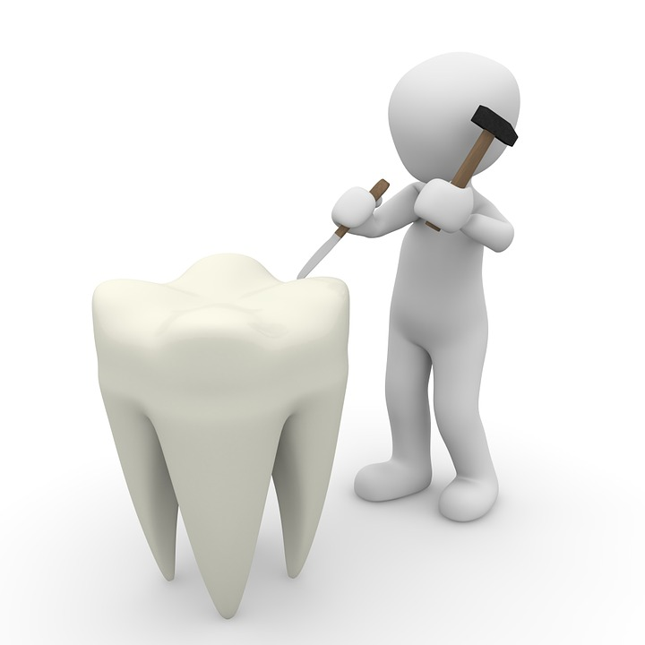 Tooth, Dentist, Close Up, Body Care, Clean, Zahntechnik