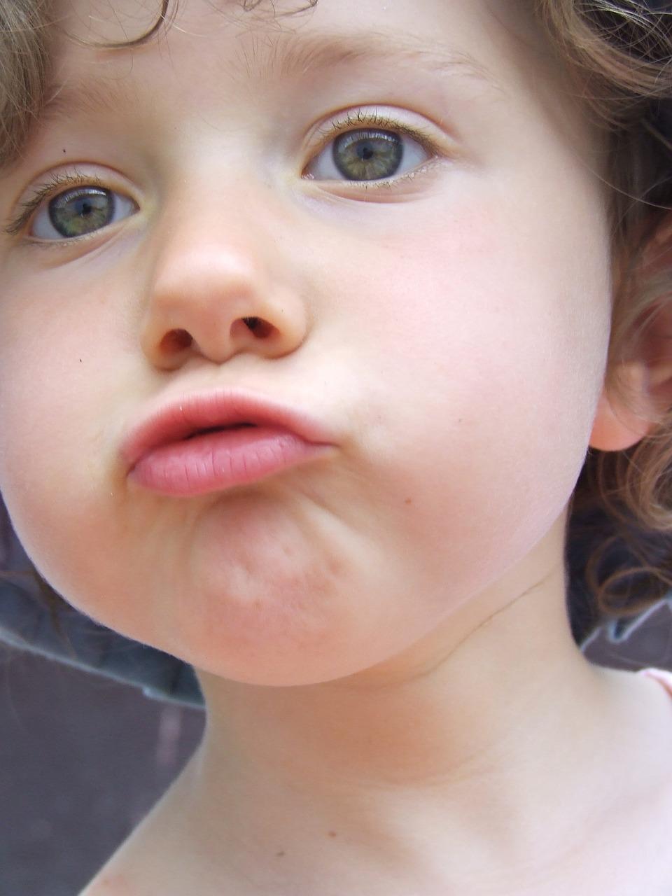 Фото большой губа у детей