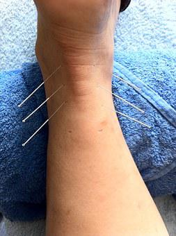 Acupuncture, Sport Injury