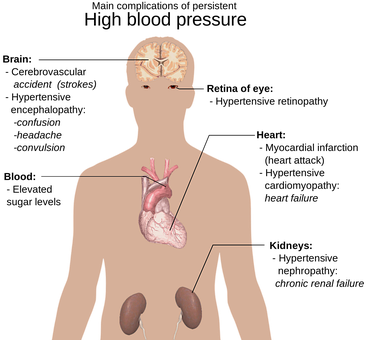 Anatomy Of The Human Body, hypertension, Heart Attack