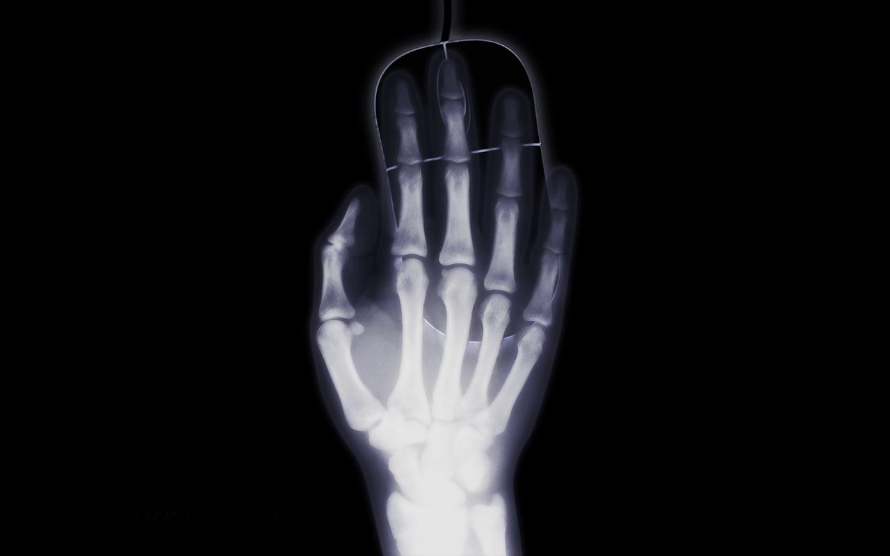 Nanox lève 59 millions de dollars pour une technologie de scanner à faible coût et de taille réduite pour remplacer les rayons X
