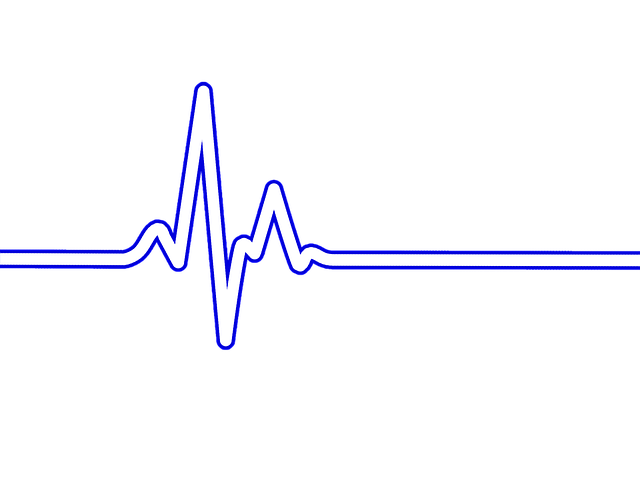 Heartbeat Png Transparent Black: Heart Rate Bpm Ecg · Free Image On Pixabay