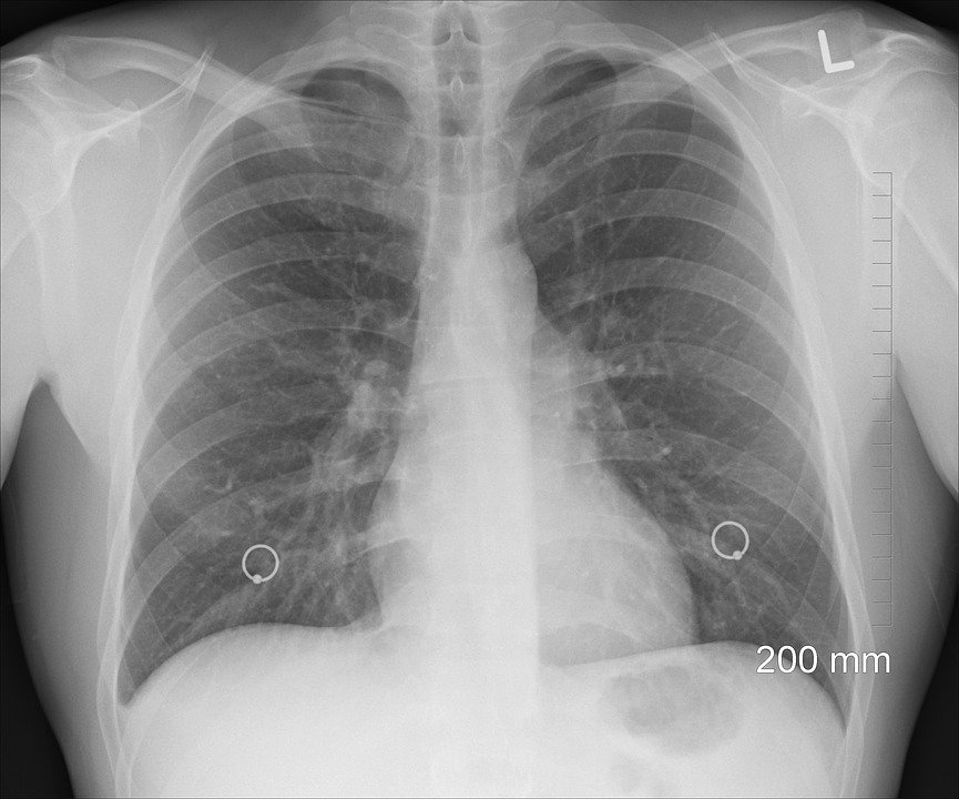 Diagnosis, Xray, Chest, Lungs, Ribs, Body, Human