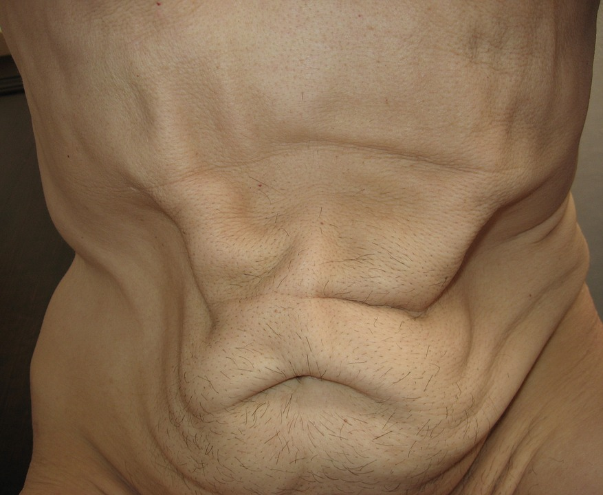 Humano Mager Estómago · Foto gratis en Pixabay