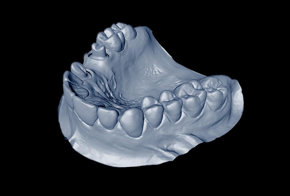 Isolated Dental Model Mandible - Free image on Pixabay
