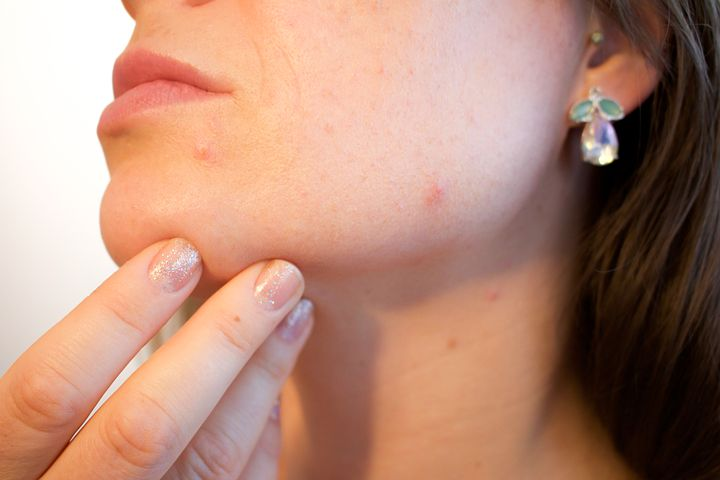 Adult Acne, Pores, Skin, Pimple, Female, Face