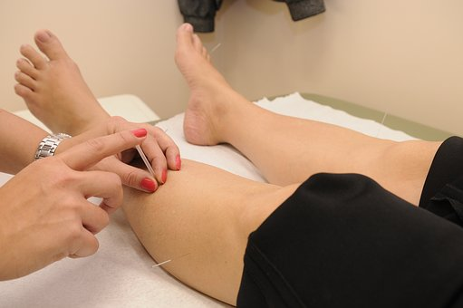 Acupuncture, Therapy, Physical Therapy
