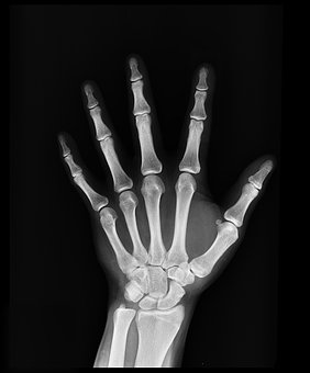 X-Ray, Health, Arm, Doctors, Medicine