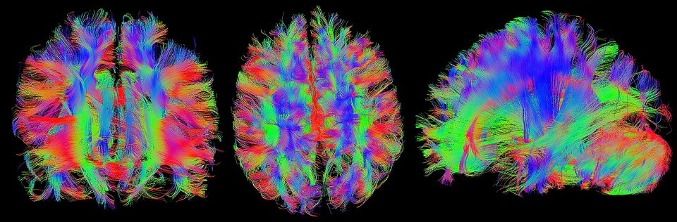 Cérebro, Mrt, Ressonância Magnética, Cabeça