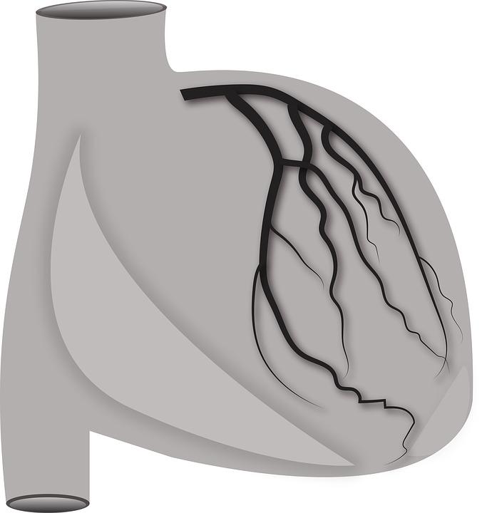 Arteria Coronaria Izquierda Mcm · Imagen gratis en Pixabay