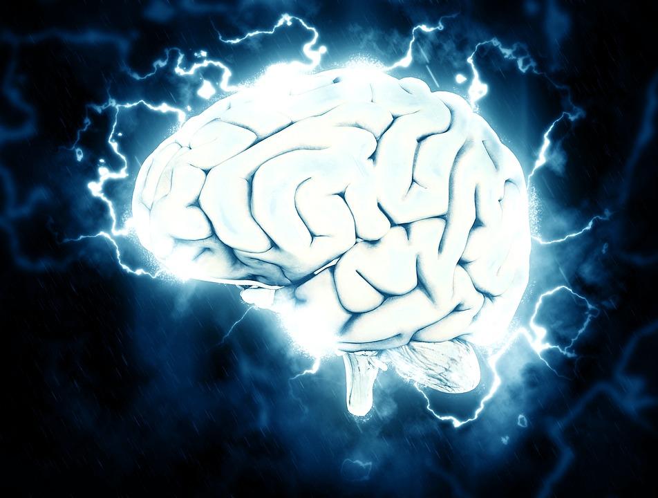 脳, 電気, 知識, 片頭痛, 頭痛の種, ストレス