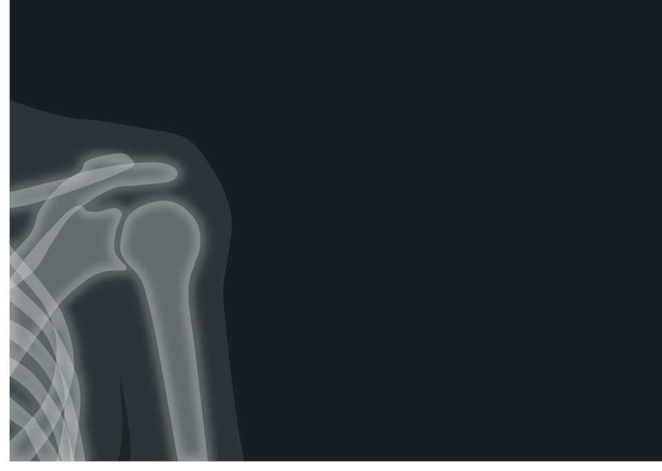 Рентген, Рентгеновское Изображение, Излучение, Плечо