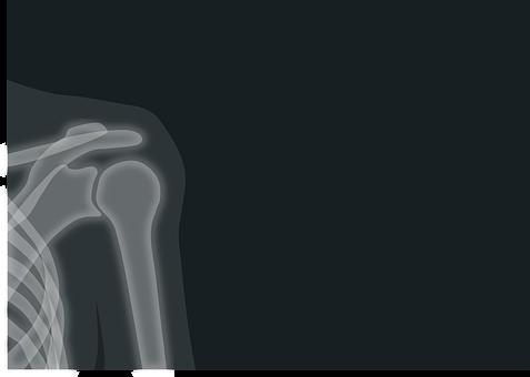 X 線, X 線画像, 放射線, 肩, 鎖骨, 医療