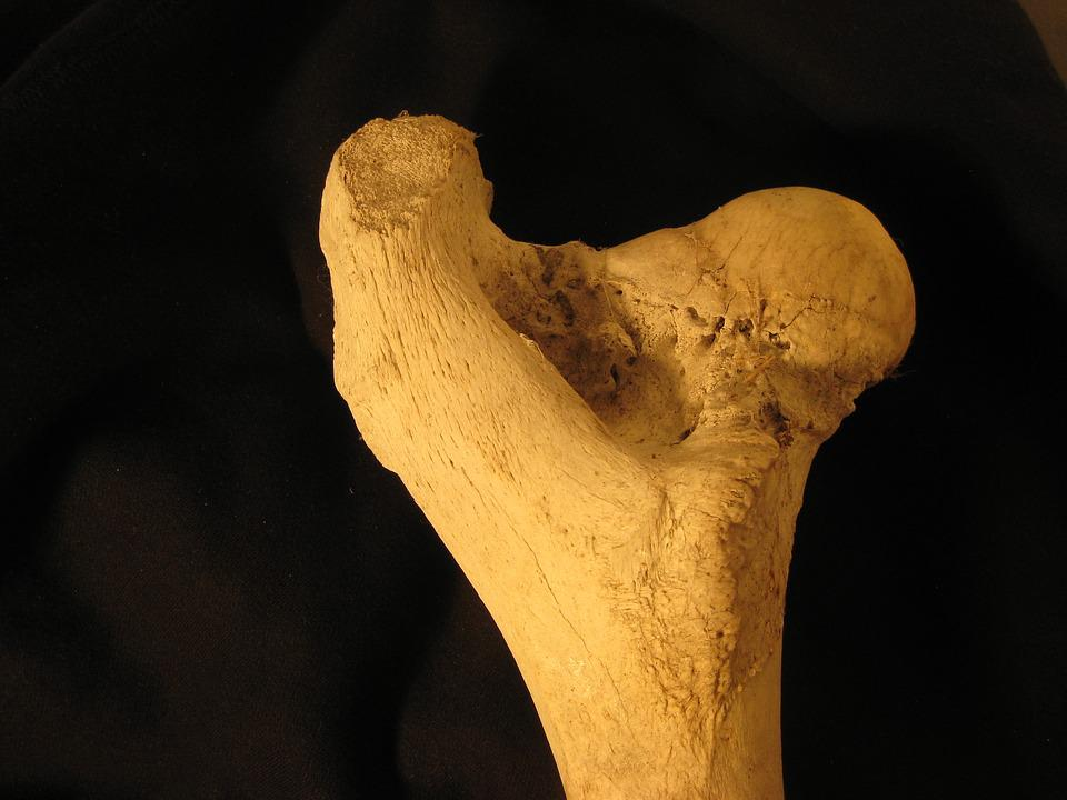 Hueso Fémur Anatomía · Foto gratis en Pixabay