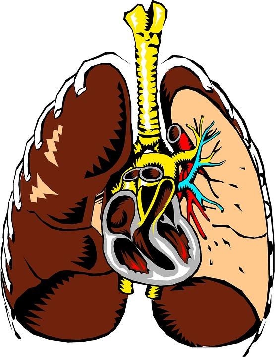 Cuore polmonare