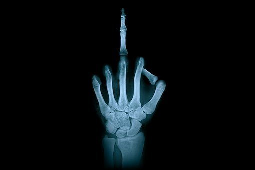 Hand, Middle Finger, X-Ray Radiation