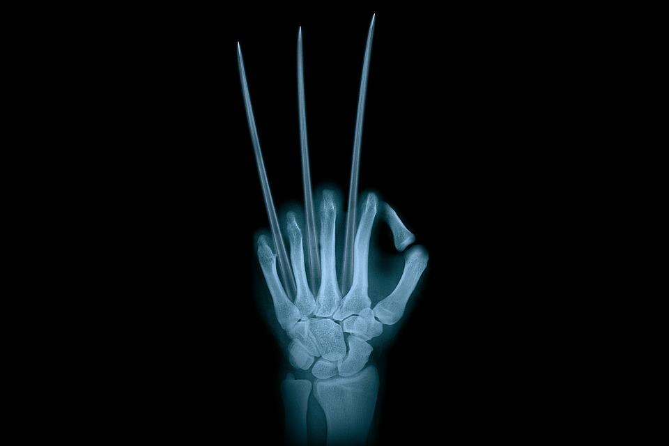 Hand Adamantium Wolverine X-Ray · Free image on Pixabay