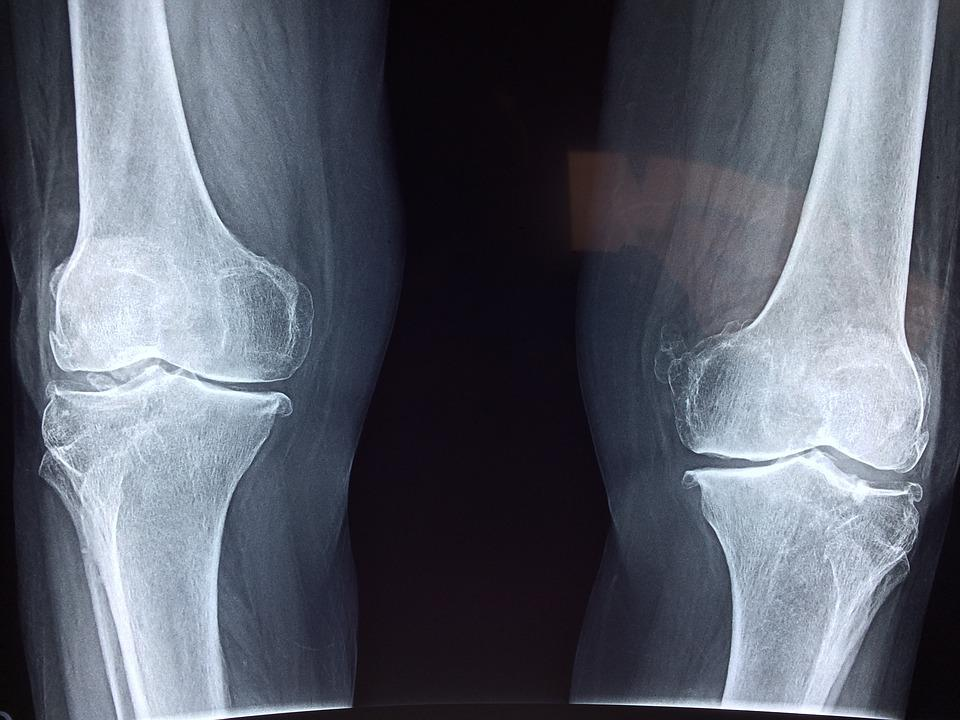 Knee X-Ray Medical · Free photo on Pixabay